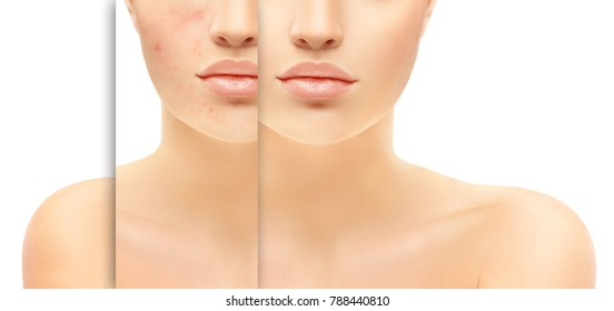 Post-Acne Marks /Treating Acne Scars