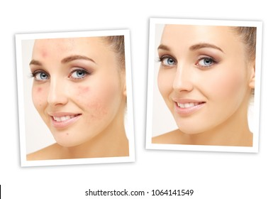 Post-Acne Marks /Treating Acne Scars.Acne Scar Removal