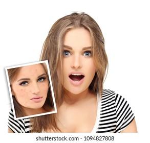 Post-Acne Marks /Treating Acne Scars.Acne Scar Removal