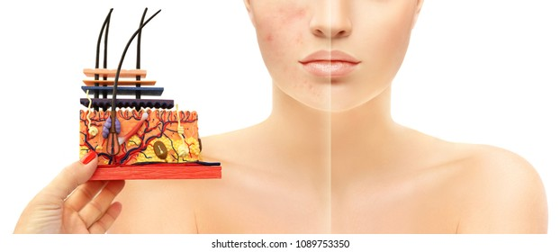 Post-Acne Marks /Treating Acne Scars(anatomical skin model)