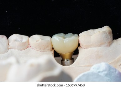 Posterior zirconia implant crown with stock abutment