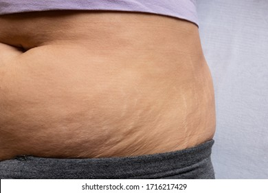 Postnatal changes as stretches on skin. After birth marks on belly of woman. Close-up view of postpartum stretches or age skin recovery