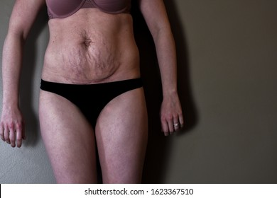 Postpartum mom close up picture of stomach with stretch marks and loose skin on her body experiencing depression and loss of confidence