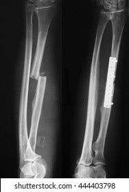 Pre and postoperative of radius fracture x-ray image
