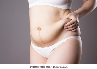 Pregnancy line - linea nigra, tummy tuck, overweight female body and flabby belly on gray background, studio shot