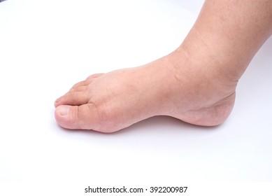 Pregnant women edema of foot