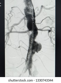 The preoperative evaluation consisted of angiogram of the aorta. The angiogram shown infra-renal aortic aneurysm.