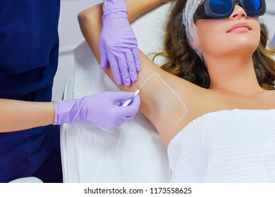 Preparation for diode laser hair removal