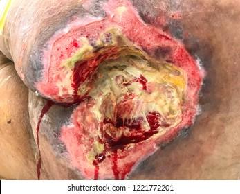 Pressure injury stageIV.Bedsore pressuresore bedridden.HealthCare and Medical Concept.