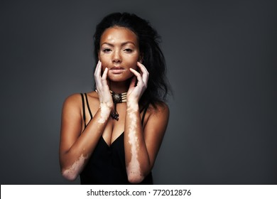 Pretty african girl in the studio with vitiligo disease and skin trouble. She is different but very beauty woman