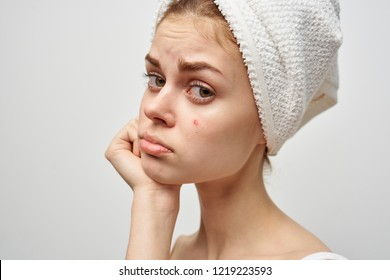 pretty woman with a towel on her head and skin problems