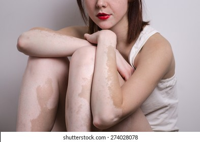 pretty young woman with red lips vitiligo affected pigmentation on arms and legs