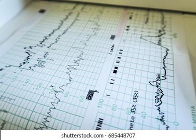 Printing of cardiogram report, cardiotocography (ctg), close-up