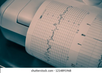 Printing of cardiogram report coming out from Electrocardiograph in hospital.