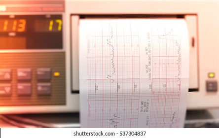 Printing of cardiogram report coming out from Electrocardiograph iin delivery room