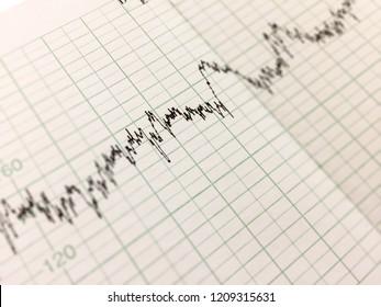 Printing of cardiogram report, electrocardiography, close-up