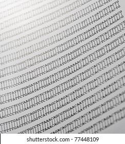 Printout of a gene DNA sequence alignment