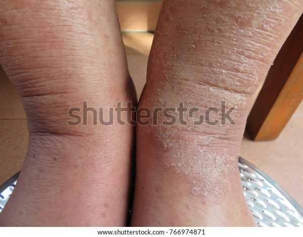 Problem Dry Skin Peeling On Legs Stock Photo Edit Now 766974871