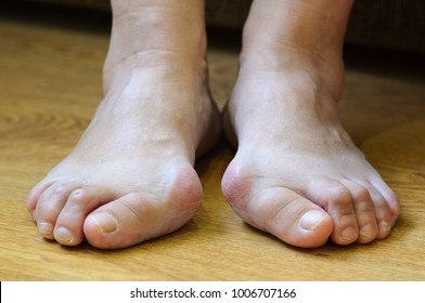 Problem feet with bunion (Hallux valgus)