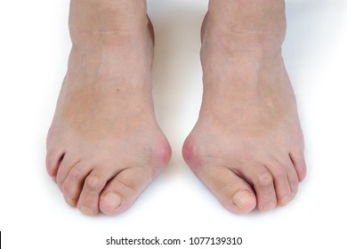 Problem feet with bunion (Hallux valgus) on white background