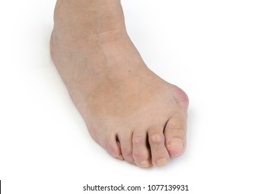 Problem foot with bunion (Hallux valgus) on white background