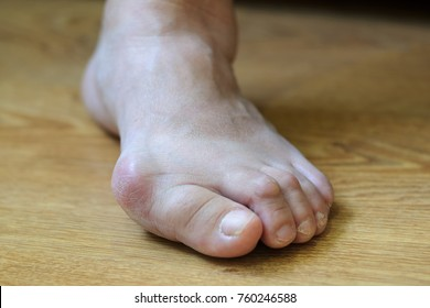Problem foot with bunion (Hallux valgus)