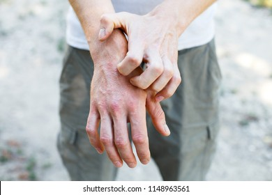 The problem of many people - eczema on hand. Street background. Man itchind psoriasis skin with red rashes and spots