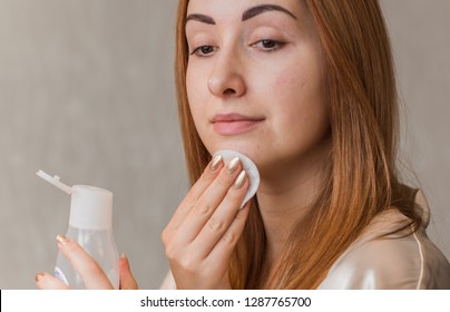 Problem skin prone to rashes and acne, acne scars, concept of healthy skin, dermatology and cosmetology