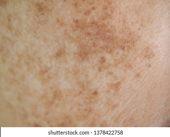 Problem skincare and health concept. Closeup wrinkles, melasma, Dark spots, freckles, dry skin ,pigment on asian woman face texture background.