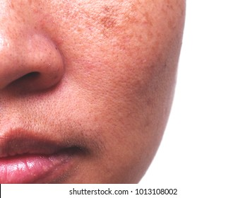 Problem Skincare and  health concept. Wrinkles, melasma  , Dark spots, freckles , dry skin,pigmentation  on face middle female.