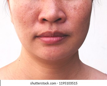 Problem skincare and health concept. Wrinkles, melasma, dark spots, freckles, dry skin on face middle female.
