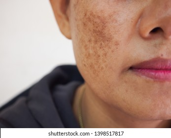 Problem skincare and health concept. Wrinkles, melasma, Dark spots, freckles, dry skin on face middle age woman .