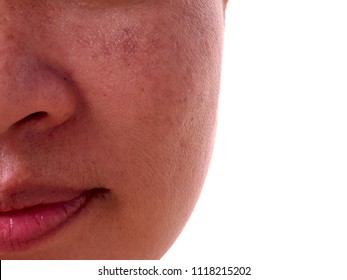 Problem skincare and health concept.Melasma and Freckle on woman face.