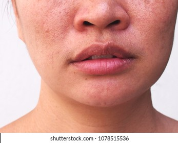 Problem Skincare and health concept.Wrinkles,melasma,dark spot,freckles,dry skin on face middle female.