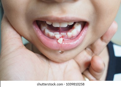 The problem with teeth with children. Rocking and falling