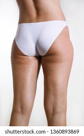Problem of women body concept: cellulite, weight loss, fat, varicose veins. Sexy young woman in lingerie with slim body sitting on a diet. Sports, fitness, plastic surgery and aesthetic cosmetology