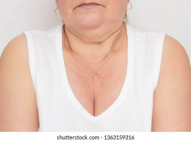The problematic place for a woman is dry and wrinkled skin in the zone of decollete for a woman, white background, cosmetology, pigmentation