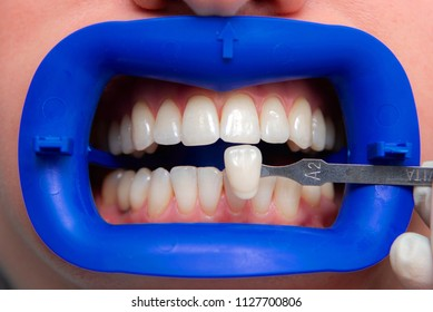 procedure for comparing the color shades of teeth before bleaching