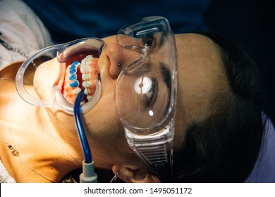 process of placing white dental braces to a Caucasian girl in a dental clinic with a dentist girl. Real process in a clinic with real client.