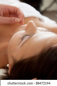 Professional acupuncture therapist placing a needle in the chin of a patient during a facial treatment
