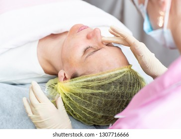 A professional cosmetologist applies a chemical peeling solution to the patient on the skin of the face with the help of hands in gloves. Close-up.