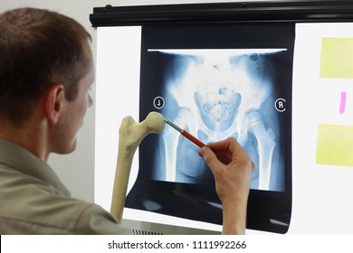 Professional with femur bone model watching image of hip- joint,  pelvis at x-ray film viewer. Diagnosis,treatment planning