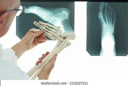 professional with lower limb model browsing foot bones
