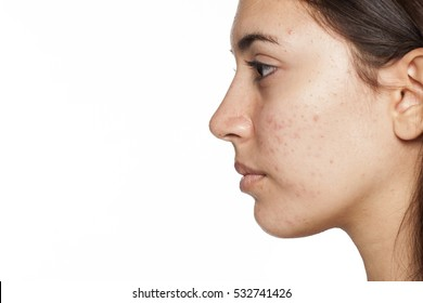 profile of young girl with acne on white background