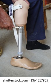 Prostheses person technician.