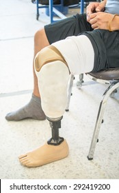 Prosthesis/amputee