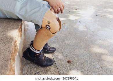 prosthetic leg, The poor amputee with his old prosthesis using