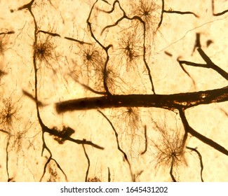 Protoplasmic astrocytes. They are located in the grey matter and have numerous processes, almost all of the same length. The thick black strokes are blood vessels. Silver chromate Golgi method