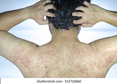 Psoriasis is an autoimmune disease that affects the skin cause skin inflammation red and scaly. Psoriasis skin.