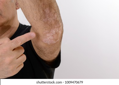 Psoriasis is a chronic inflammatory disease of the skin.  Detail of the elbow. Blank space.